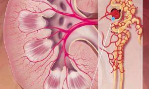 Гематурическая форма хронического гломерулонефрита