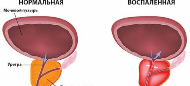 Если у мужа бактериальный простатит аппарат ермак от простатита отзывы