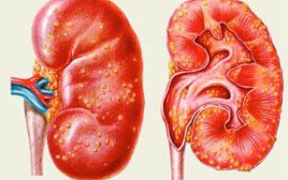 Анализ крови при пиелонефрите