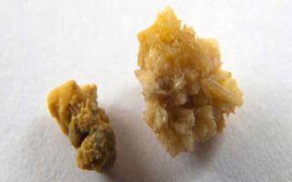 Лечение и растворение оксалатных камней в почках