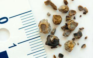 Симптомы и признаки камней в почках