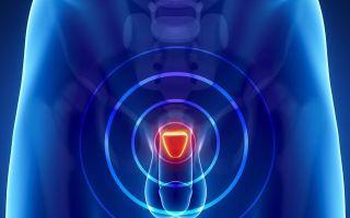 Перекись водорода для лечения простатита