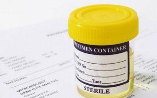 Причины повышения лейкоцитов в моче