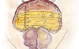 Доброкачественная дисплазия предстательной железы