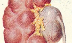 Гидронефроз почки при беременности