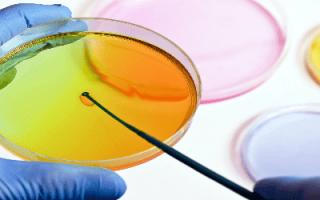 Бактерии в моче при беременности