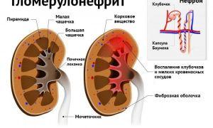 Анализ мочи при гломерулонефрите