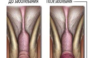Воспаление головки и крайней плоти у мужчин
