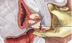 Противопоказания и побочные эффекты от массажа простаты