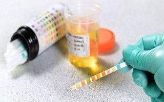 Нормальные показатели лейкоцитов в моче