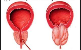 Альтернативные методы лечения простатита