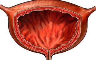 Аномалии развития мочеполовой системы