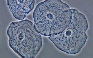 Плоский эпителий в моче