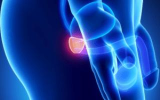 Лечение импотенции и хронического простатита