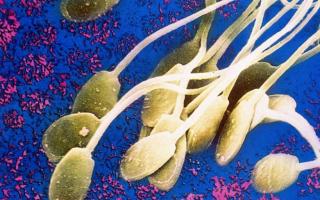 Как улучшить морфологию спермограммы