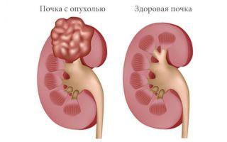 Нефробластома у детей