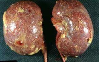 Обструктивный и необструктивный пиелонефрит