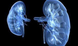Острый гломерулонефрит с нефротическим синдромом