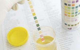 Тест-полоски для определения сахара в моче