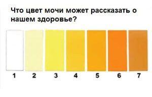 Темно желтая моча - причины у женщин и мужчин, что делать