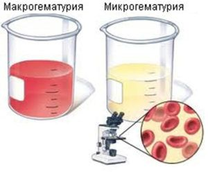 Макрогематурия и микрогематурия