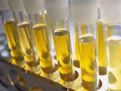 Биохимический анализ мочи — как собрать, что показывает биохимия