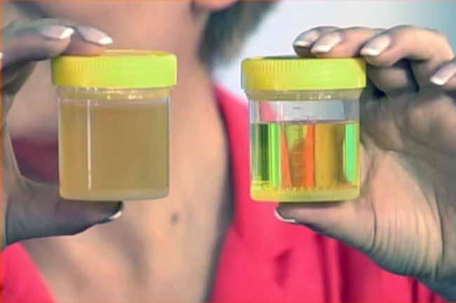 Цистит и белок в моче у беременных 12