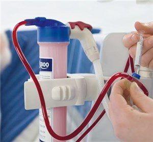 Диализаторы для гемодиализа