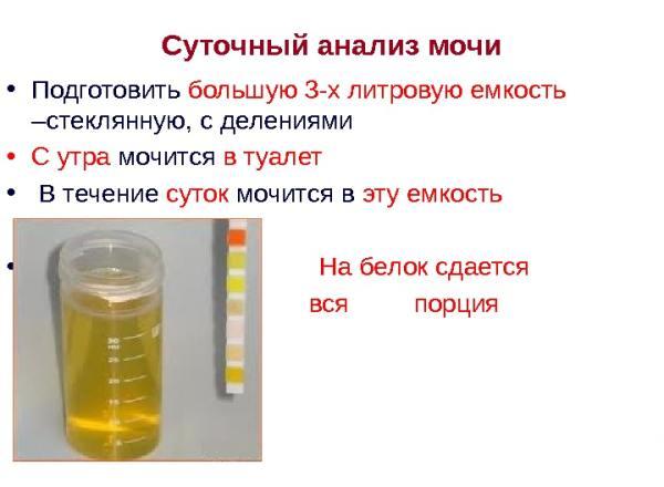 Что представляет собой суточный анализ мочи на белок