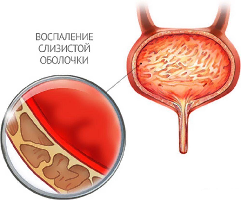 Кровь в моче у женщин что это может быть причины лечение