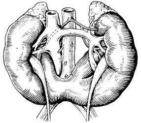 Почки в форме подковы или двойные почки