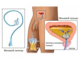 Установка мочевого катетера