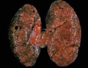Классификация хронического гломерулонефрита