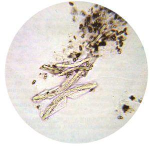 Аморфные фосфаты под микроскопом