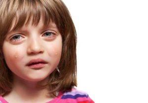 основным симптом ГН является отёчность лица