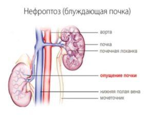 Нефроптоз