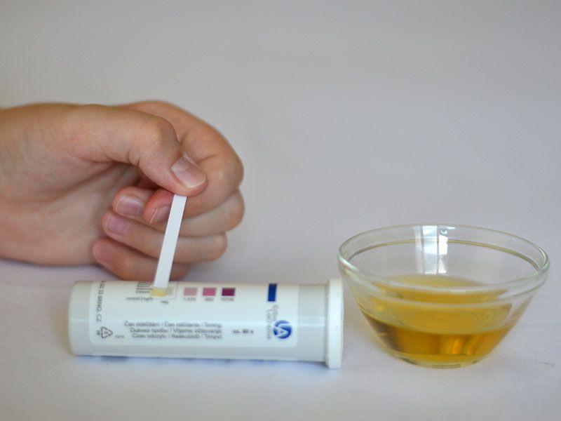 Песок в моче и мочевом пузыре: симптомы, причины, лечение
