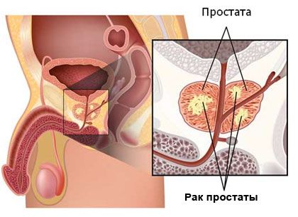 Онкология простаты кровь в моче