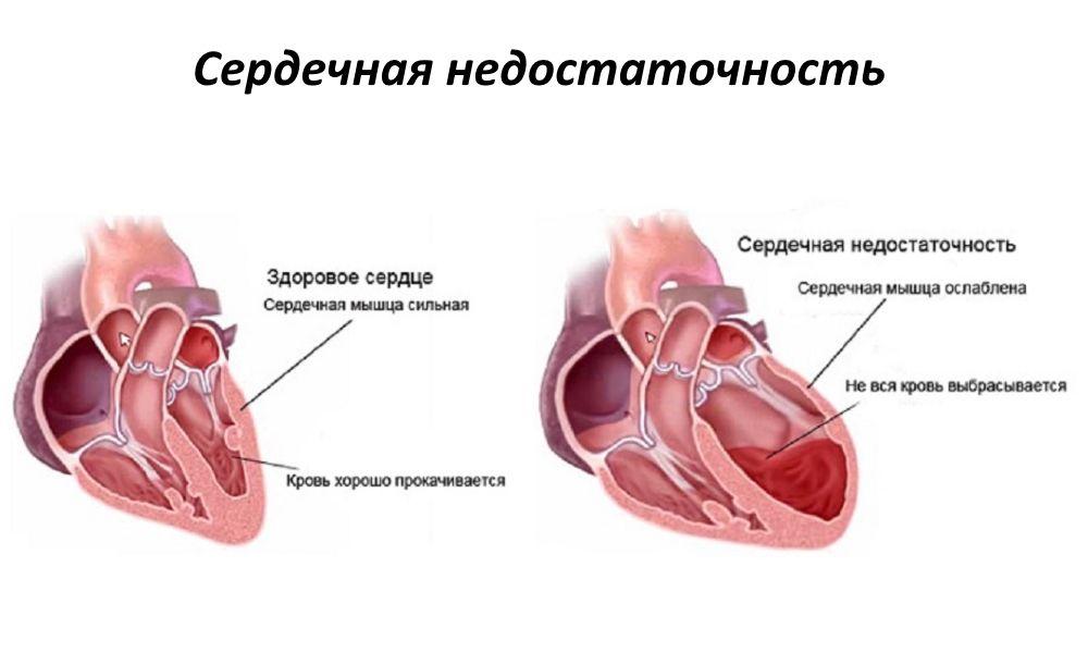 Лечить сердечную недостаточность в домашних условиях