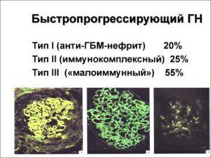 Классификация быстропрогрессирующего гломерулонефрита