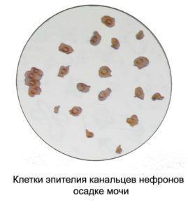 Эпителий в моче