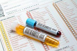 Креатинин в крови повышен анализ мочи в норме