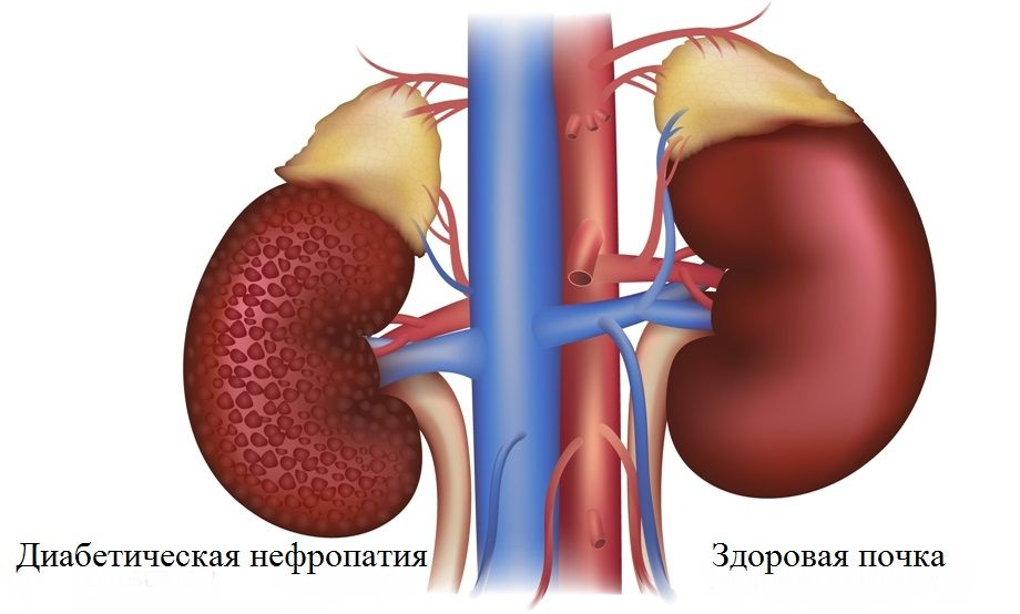 Пиелонефрит может быть осложнением диабета