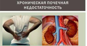 Диета при повышенном креатинине в крови у женщин с сахарным диабетом