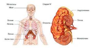 метастазы рака почки