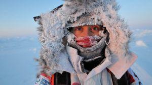 Сильное обморожение провоцирует заболевание