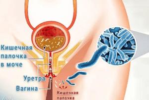 Пути попадания палочки в мочевой пузырь у женщин