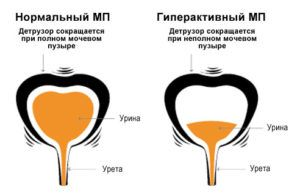 гиперактивность мочевого пузыря