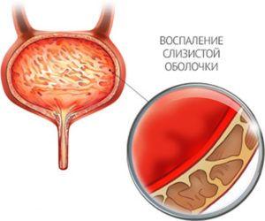 Аоспаление мочевыделительной системы женщины