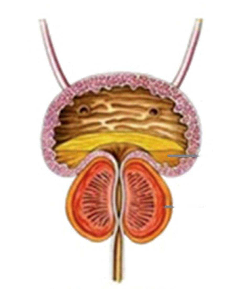 Проведение аденомэктомии подготовка пациента и разновидности операции
